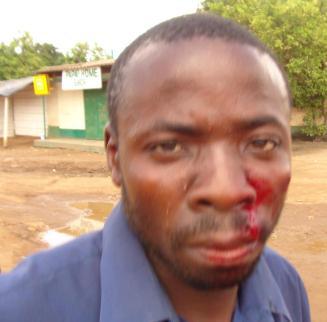 UPND cadre injured in the fracas