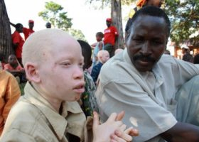 Malawi: Minister accused of fueling attacks against persons with albinism