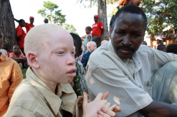 Swazi Albino