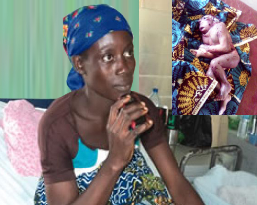 Woman-gave-Birth-to-A-Monkey-Like-Baby