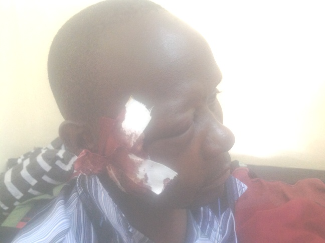 An MMD member attacked by suspected PF thugs