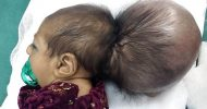 Afghan doctors remove extra head from baby girl